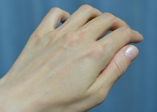 ユースキンAを塗り終わった手