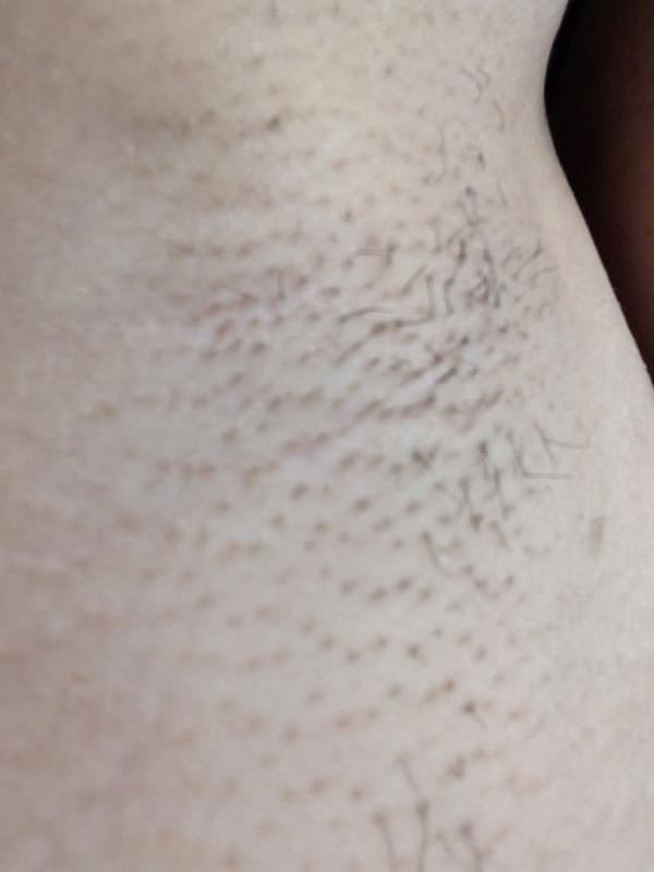 ワキ脱毛2回目から2週間経過後の肌の様子
