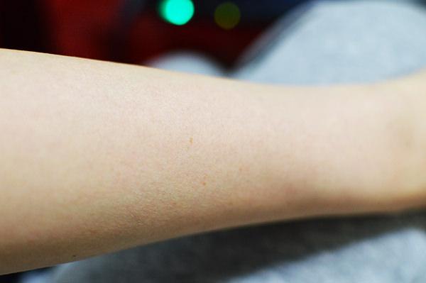 10年以上前に光脱毛で処理した腕
