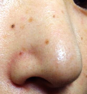 いちご鼻対策実験前