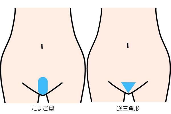 shori_katachi_nomal