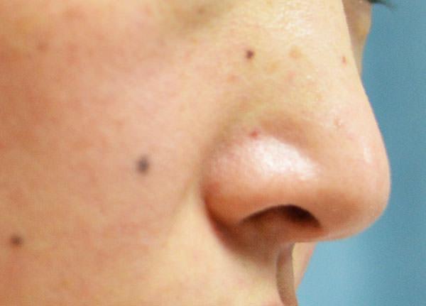 洗顔後の鼻