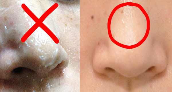 ワセリンを鼻に塗り毛穴の角栓を除去